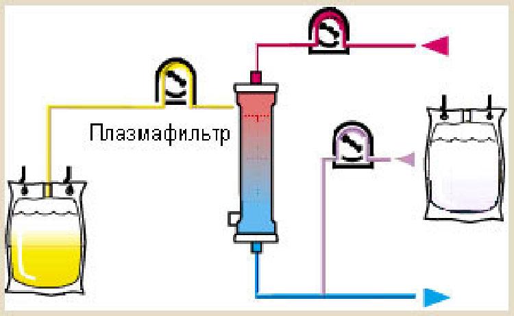 Принцип плазмафереза