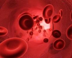 Определение причин пойкилоцитоза в общем анализе крови