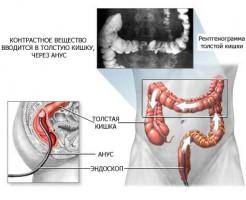 Что такое ирригоскопия кишечника?