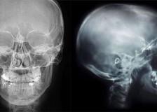 Когда назначают рентген головы?