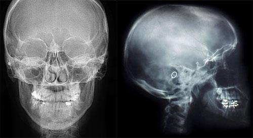 Снимок рентгена головы