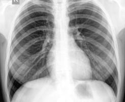 Что показывает рентген грудной клетки?