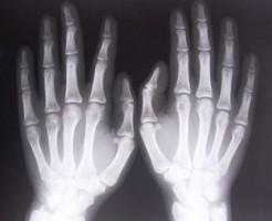Когда назначают рентген руки?