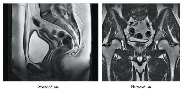 Спиральная томография малого таза