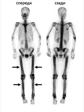 Снимки скелета