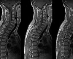 Какие болезни диагностируются на рентгене грудного отдела позвоночника?