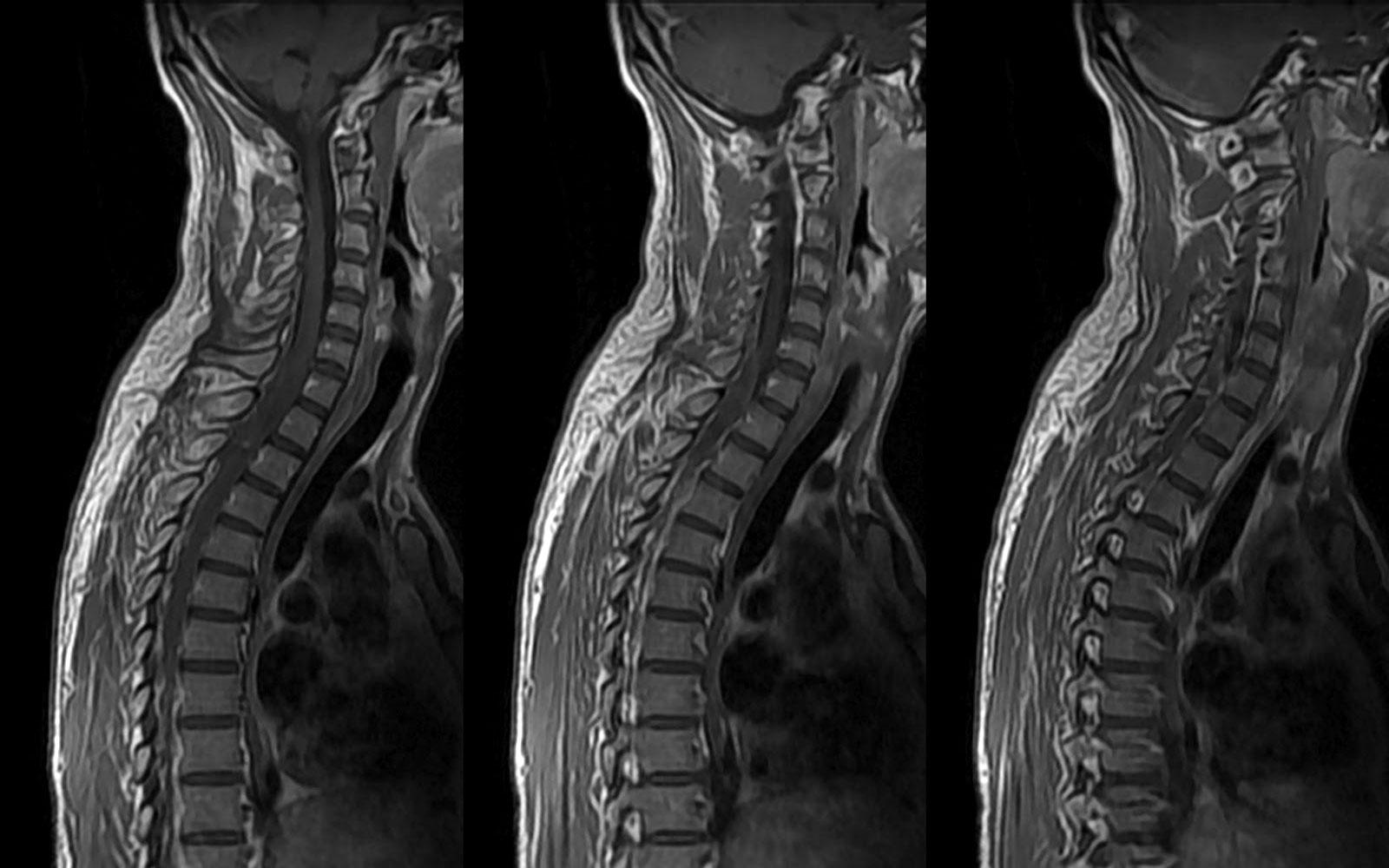Что видно на рентгенографии грудного отдела позвоночника