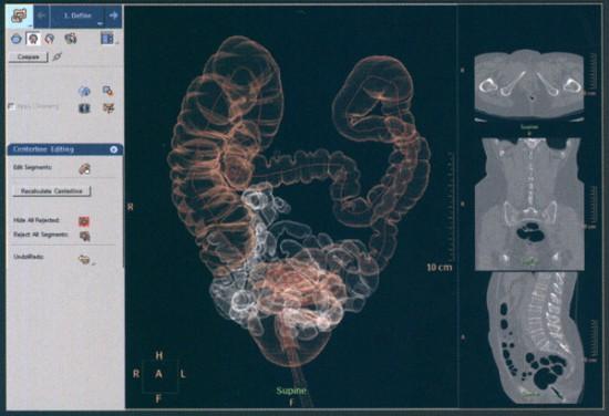 Снимок с виртуальной колоноскопии