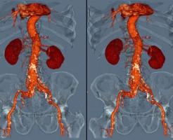 «Подсвечивание» органов на процедуре МРТ с контрастом