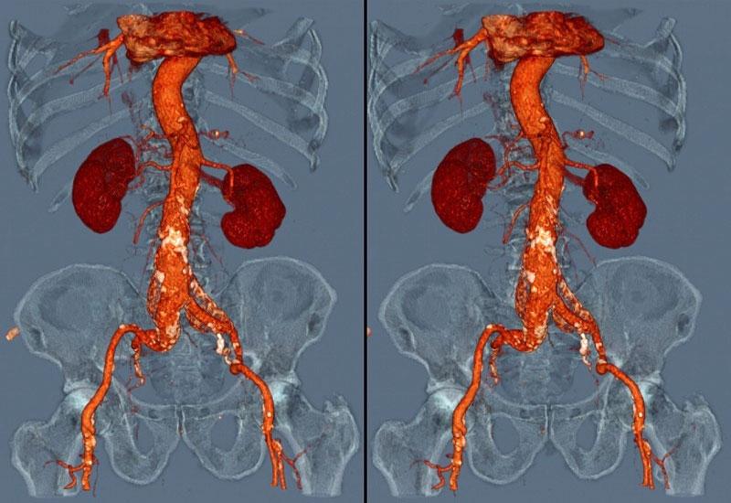 МРТ почек с контрастированием