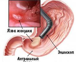 Информация о желудке и пищеводе на исследовании ФГДС
