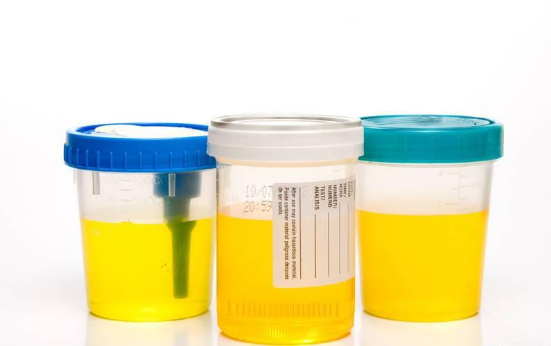 Аптечная тара для анализа мочи