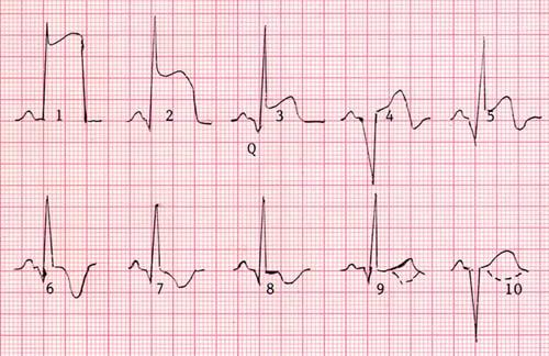 Острейшая стадия на кардиограмме
