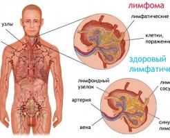 Общий и биохимический анализ крови при лимфоме