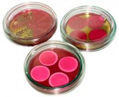 Показания к анализу крови на стерильность