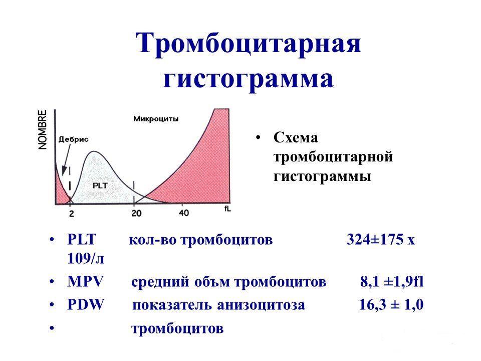 Распределение тромбоцитов в гистограмме