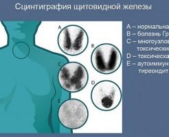 Кому и когда назначают сцинтиграфию щитовидной железы?
