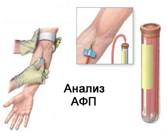 Кровь на анализ АФП
