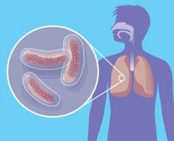 Методика выявления заболевания по анализу крови на туберкулез