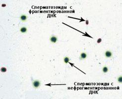 Исследование на фрагментацию ДНК сперматозоидов