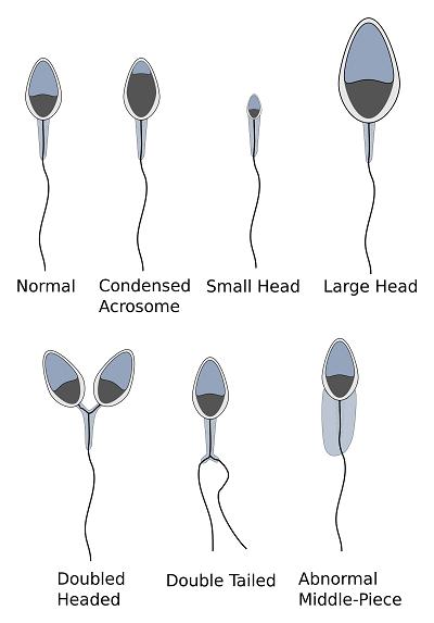 Расшифровка спермограммы по методу Крюгера и ВОЗ