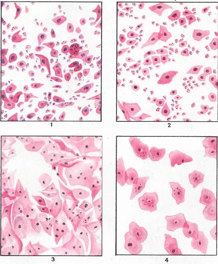 Эстрогены в четырех типах мазка