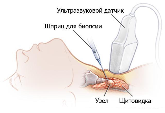 Как проводят биопсию щитовидной железы