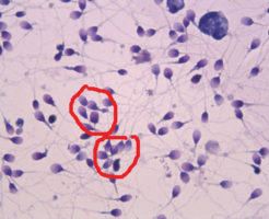 Обнаружение агглютинации и агрегации в спермограмме