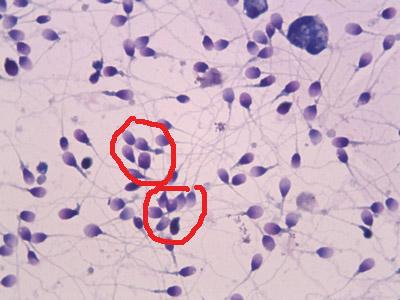 Склеивание сперматозоидов между собой
