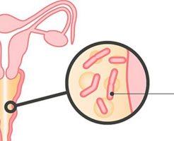 Определение состояния женской половой сферы по мазку на флору