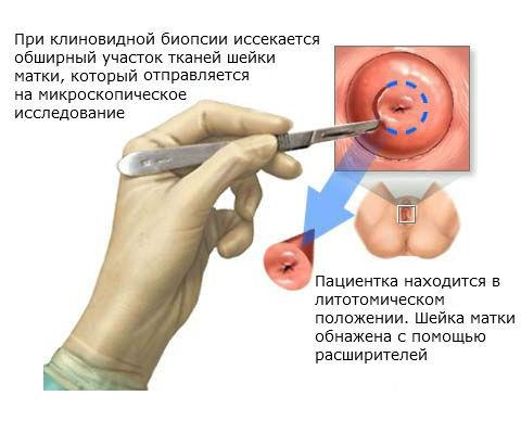 Процедура клиновидной биопсии