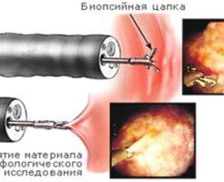 Эндоскопическая биопсия желудка