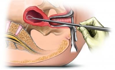 Биопсия шейки матки - как проводится процедура, показания, подготовка, период восстановления