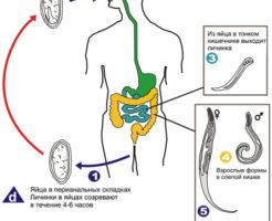 Определение заражения — как берут соскоб на энтеробиоз у детей?