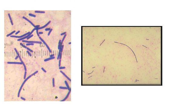 Бактерии в мазке