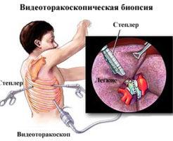 Виды и проведение биопсии легких