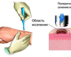 Показания к проведению биопсии кожи