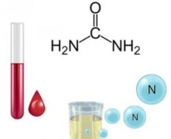 Способы снижения мочевины в крови