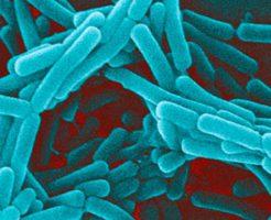 Чем опасны ключевые клетки в мазке?
