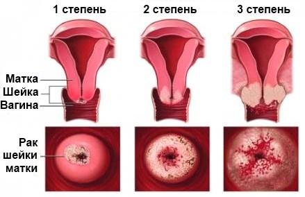 Степени развития рака