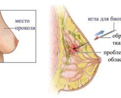 Что показывает трепан-биопсия молочной железы?