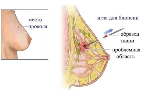 Биопсия молочной железы (груди) – стоимость, как делают, результаты, отзывы
