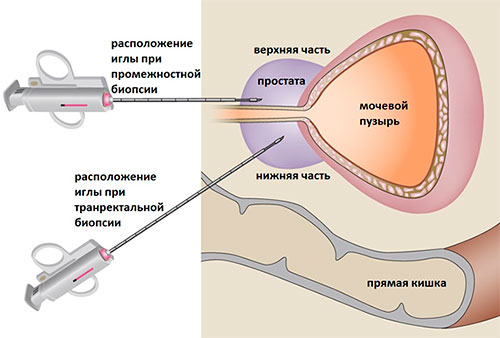 Трансректальная процедура
