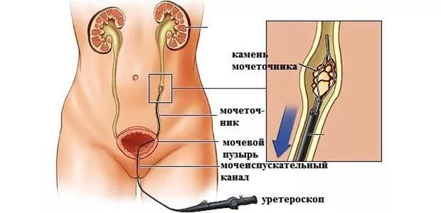 Уретроскопическая биопсия