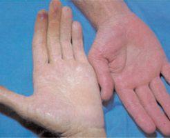 Распространенные причины низкого гемоглобина у мужчин