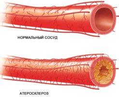 Показатель здоровья сосудов — триглицериды в крови, что это такое?