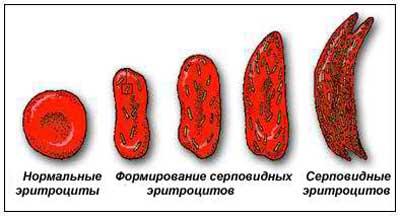 Изменение формы кровяных телец