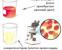 Если нашли эритроциты в моче — что это значит?
