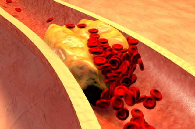 Гиперагрегация тромбоцитов