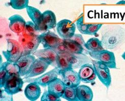 Как сдавать анализ на хламидии?